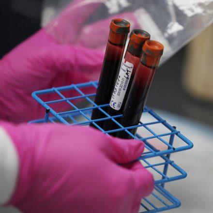 Reinfecção pelo coronavírus não parece ser comum, diz OMS